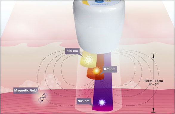 Laser Therapy For Plantar Fasciitis Essence Of Wellness